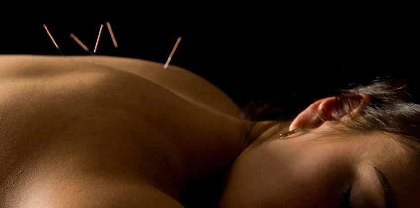 Acupuncture Gilbert